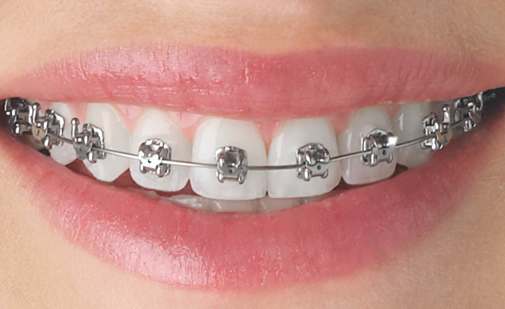 Choose Your Braces Look Traditional Ceramic Or Invisalign