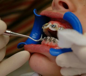 Orthodontic Adjustment